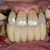 60代男性:重度歯周病咬合再構築