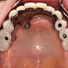 審美障害 重度歯周病